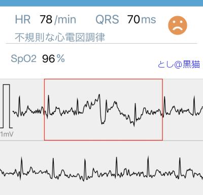 心電図とったら、不整脈