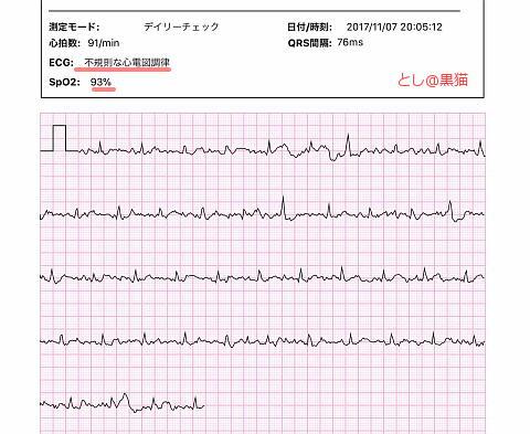 IMG_全て異常な心電図