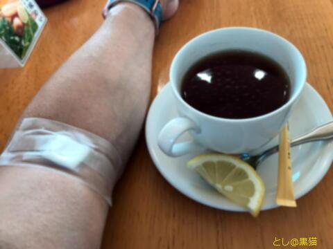 血液検査 A評価 腎機能 正常値タイル内に回復