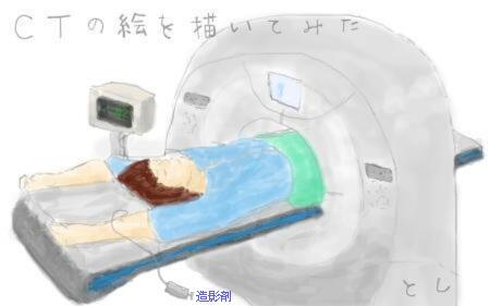 腎細胞がん 術後 2年 追跡 造影剤CT
